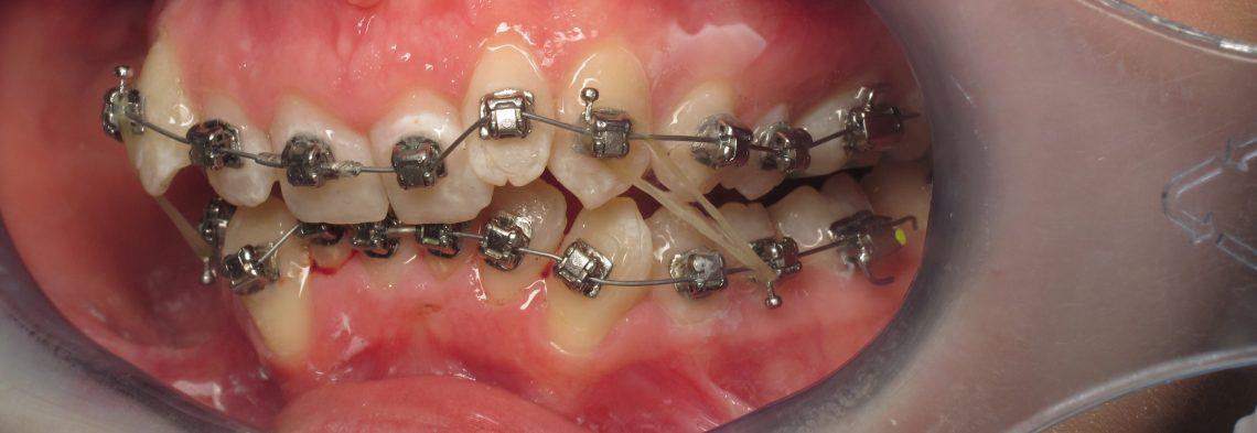 appareil dentaire temps minimum